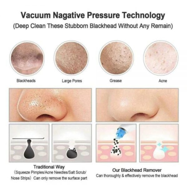 Pro Vacuum Suction Blackhead Remover Nose Facial Pore Cleaner Spot Acne Black Head Pimple Remover Beauty Face Skin Care Tool